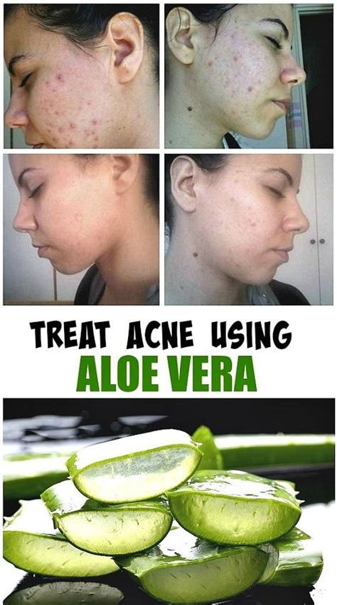 alovera in treating forehead acne picture 7