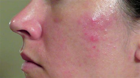 cystic acne picture 3