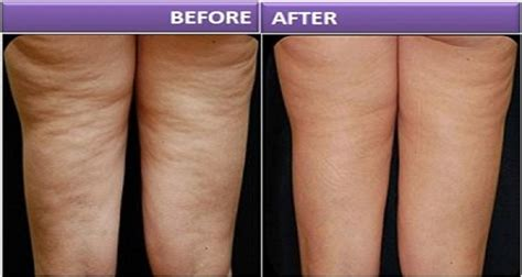 Home remedies for cellulite picture 5