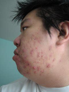 adult acne picture 11