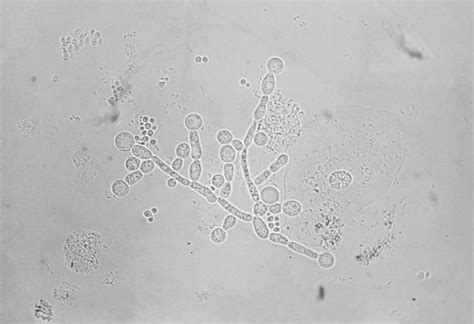 fungal infection of the skin candidiasis. picture 3