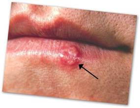 herpes sores on mouth picture 13