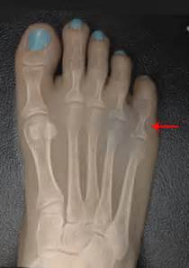 probable fracture of 5th toe joint picture 6