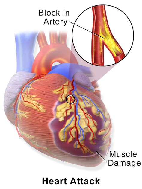 alcohol effects in muscle health picture 7