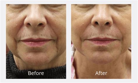 is sculptra good for acne scaring picture 6