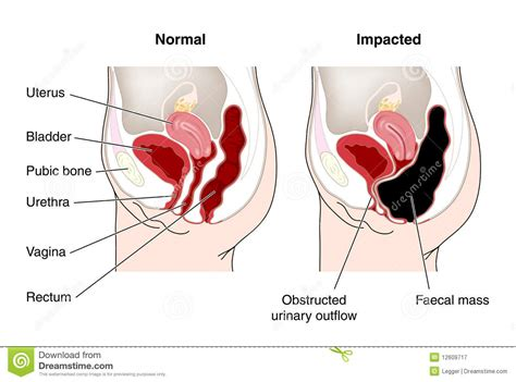 Constipation hard stools and the prostate inflamationl picture 4