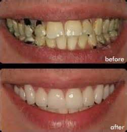 crowns on teeth picture 13