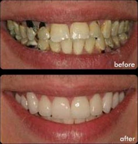 crowns on teeth picture 15