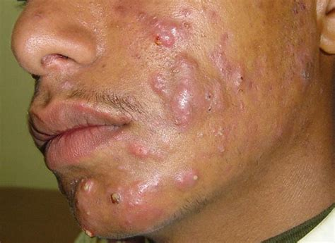 doctor natural herpes remedy picture 5