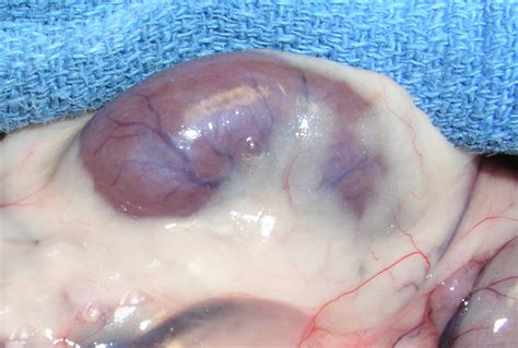 fatty liver surgery picture 9