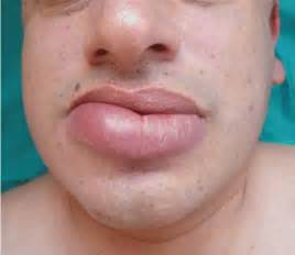 what causes for lips to rash and swell picture 9