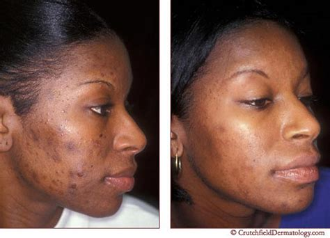 creams for acne in african americans picture 2