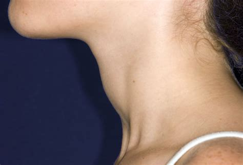 growths on thyroid symptoms picture 7