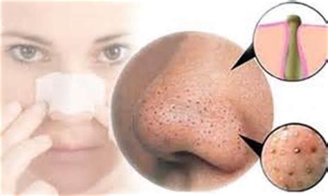 natural acne remedies picture 3