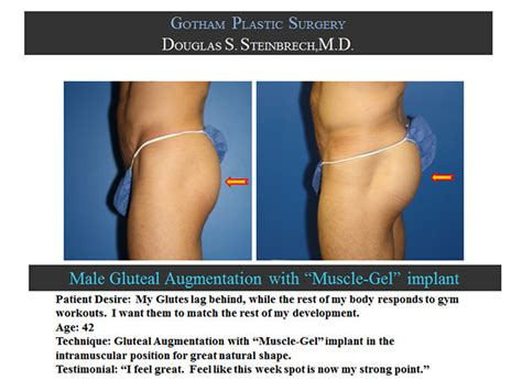 new york, penile fat injections by female dr. picture 1