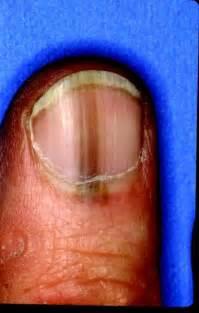 toenail fungus + laser treatment in denver picture 10