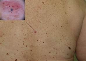 skin cancer systoms picture 15