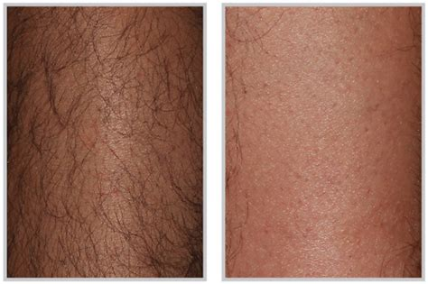 effect female hair removal picture 6