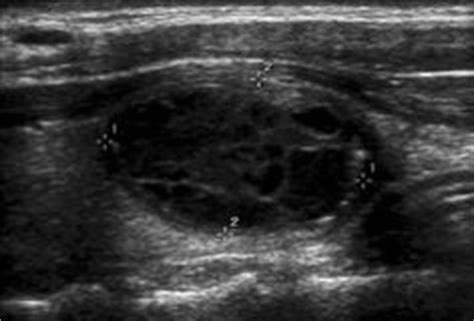 complex thyroid cyst picture 11