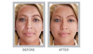 anti aging before and after pixtures picture 15