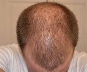 Nizoral hair loss crown picture 17