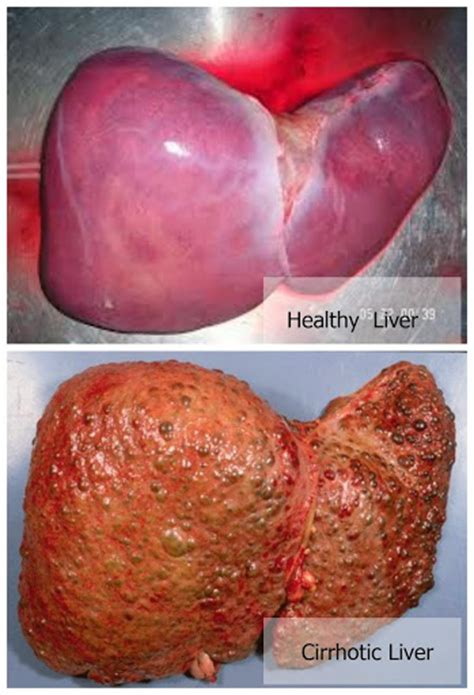 are en livers healthy picture 10