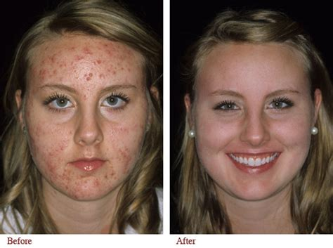 acutane for acne picture 5