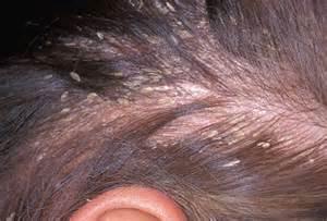 skin that flakes like dandruff picture 2