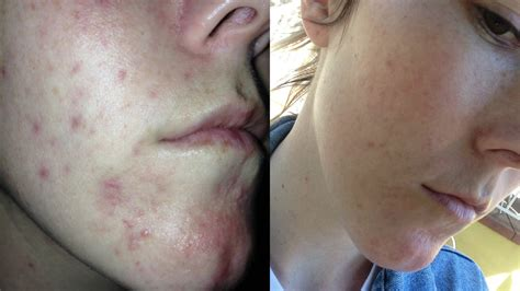 acne breakout symptoms of picture 18
