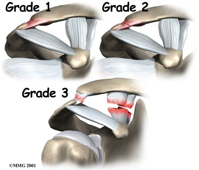 arthritis of the ac joint of the shoulder picture 4