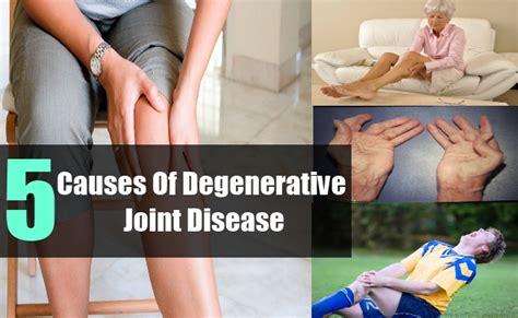 arthritis degenerative joint disease picture 1