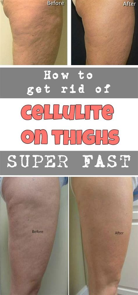 How to get rid of cellulite on thighs picture 7