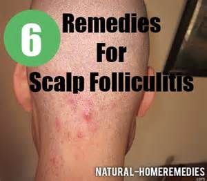 folliculitis home remedy picture 19