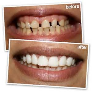 cost of teeth veneers picture 15