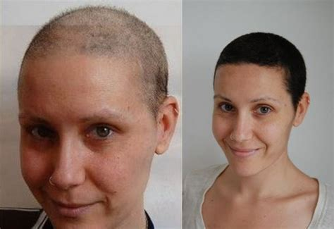 chemotherapy hair loss in women picture 5