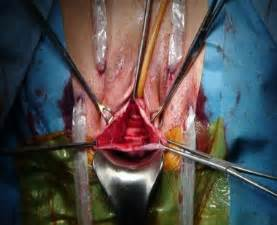 what to expect after surgery for fallen bladder picture 3