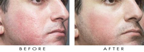 acne scar incision picture 17