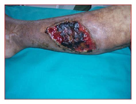 malaska skin virus picture 5