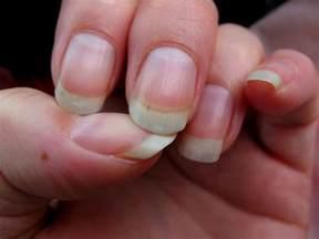 symptoms of fingernail fungus picture 18