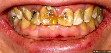 fluoride bad for teeth picture 11