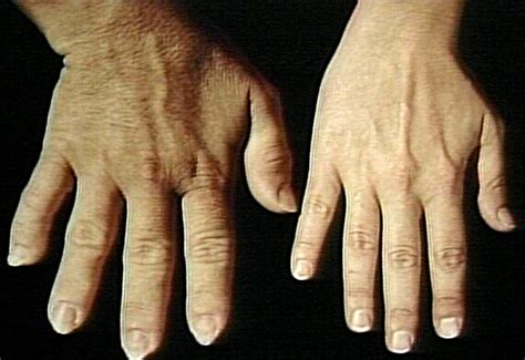arthritis aches picture 10