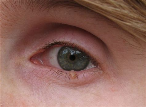 skin growths near eyes picture 8