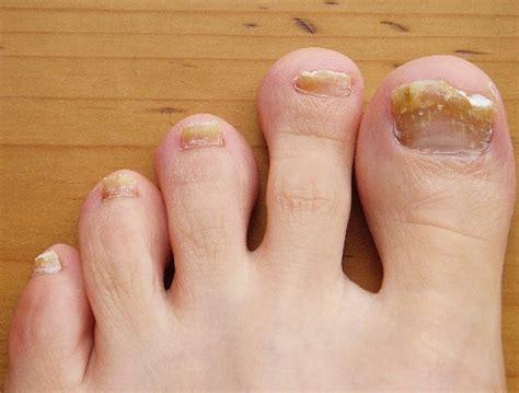 symptoms of toenail fungus picture 13