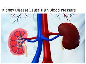 cause of high blood pressure picture 17
