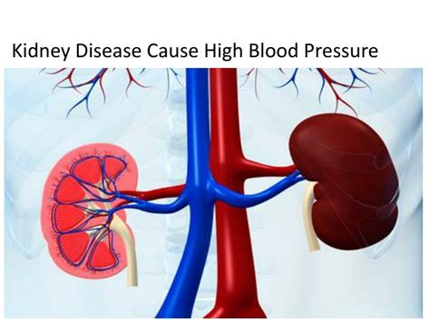 fruit causes high blood pressure picture 18