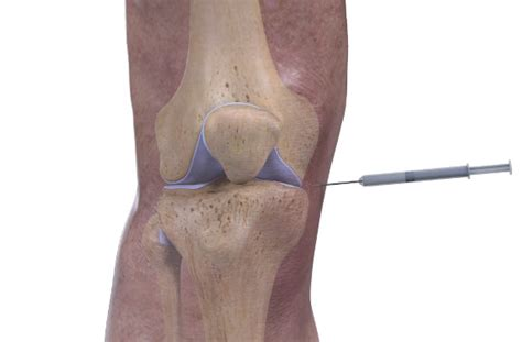 cortisone cause joint pain picture 13