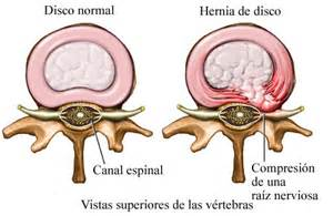 hernia pushing on the el in the right lower back picture 6