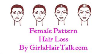 chart hair loss treatment picture 5