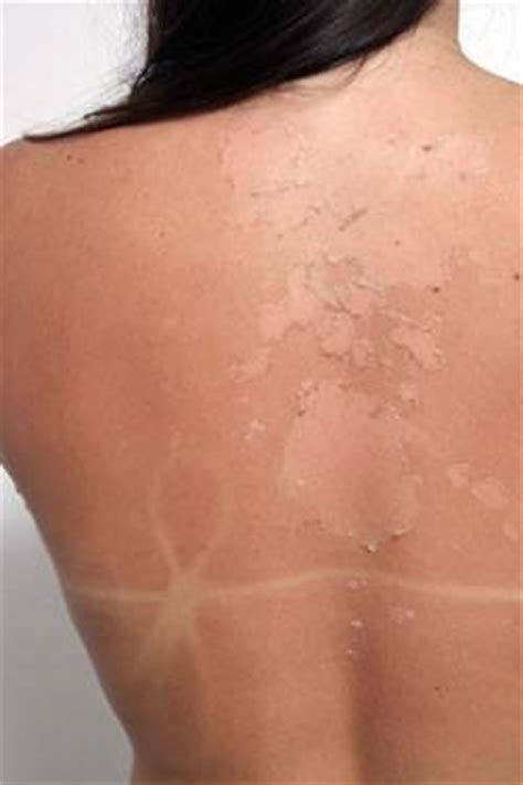 effect female hair removal picture 1