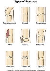 bone fracture and blood circulation picture 3